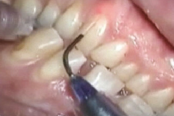 Laserowe leczenie paradontozy laserem stomatologicznym