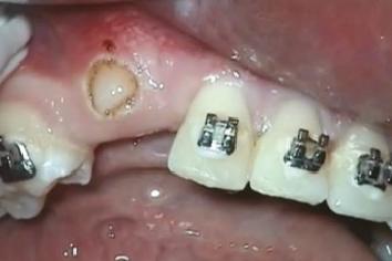 Odsłonięcie zębów zatrzymanych
