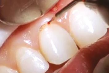 Wydłużenie korony tkanki miękkiej - stomatologia